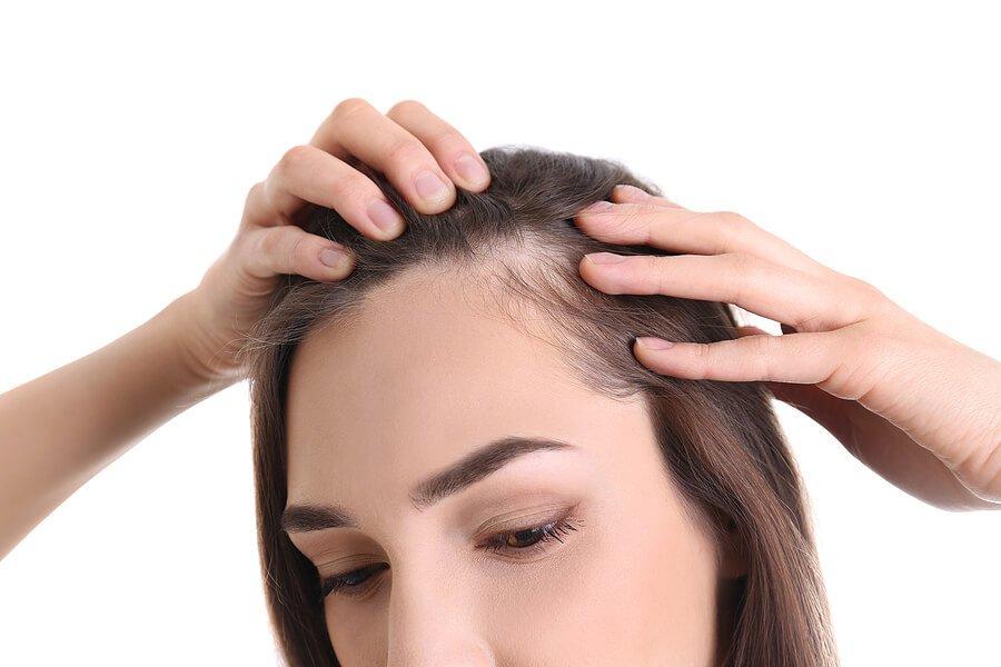 6 Best Hair Loss Treatment Shampoos Singapore [2021]