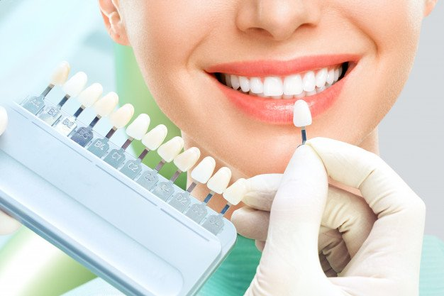 Best 10 Teeth Whitening Clinics in Singapore
