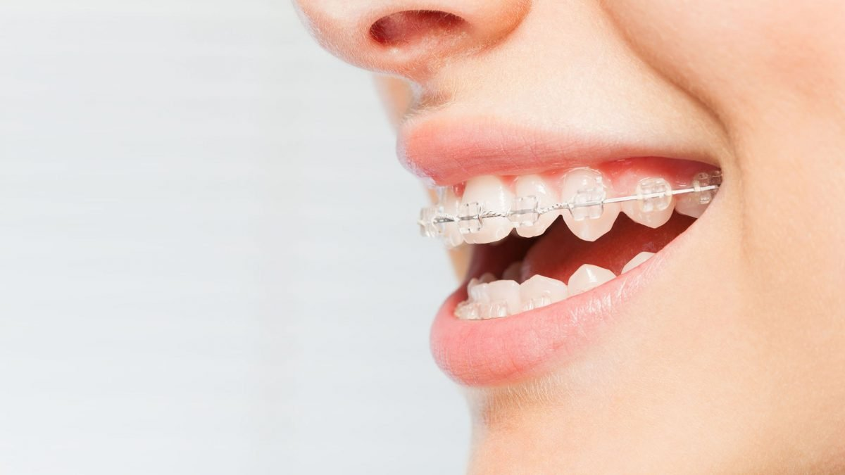 10 Best Ceramic Braces Clinics in Singapore [2021]