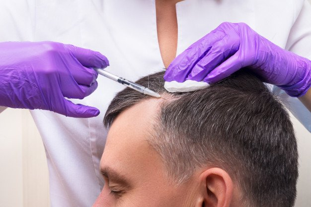 10 Best Clinics For Hair Transplant in Singapore | Best Price [2021]