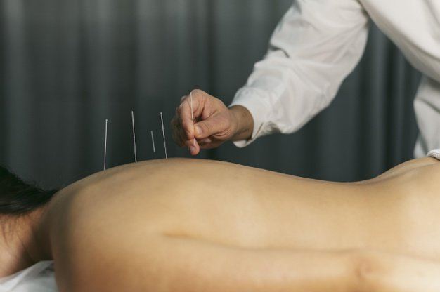 15 Best Acupuncture Clinics in Singapore For Pain Relief [2021]